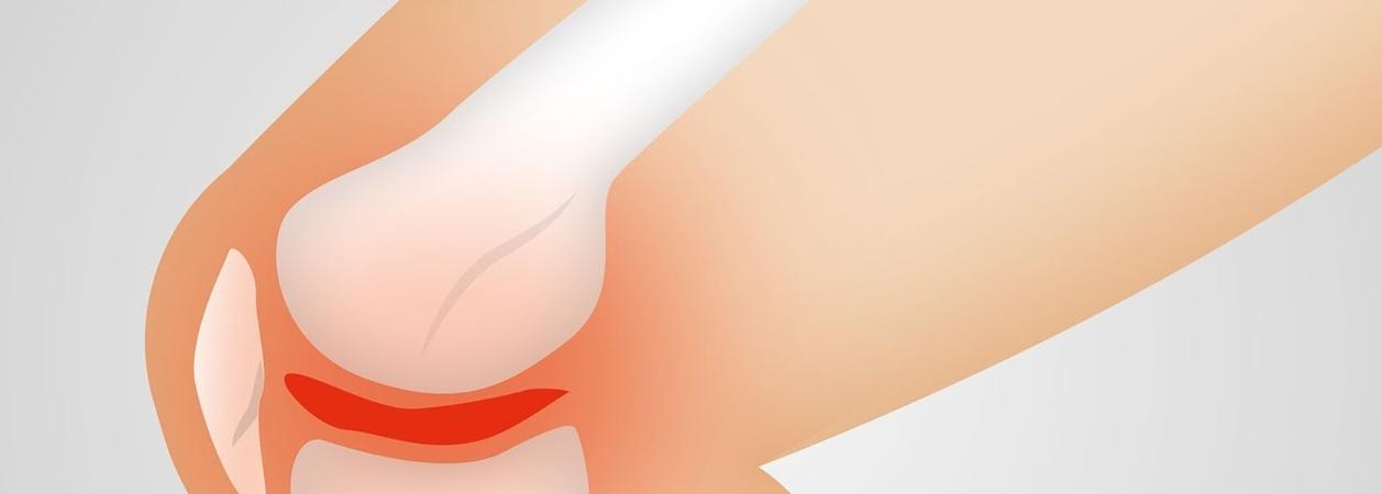 Recomendaciones y cuidados para la artrosis de rodilla